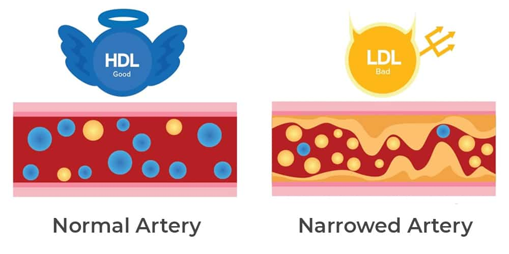 Difference between HDL and LDL